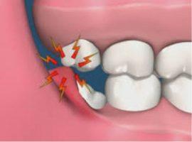 Gömülü Diş Cerrahisi